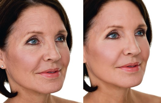 facelifting omlazeni rejuvenace kolagen